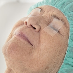 Eye lid fixation with Leukoplast skin sensitive medical tape