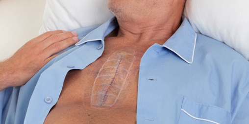 A man leans back into his pillow. His pyjamas are open, exposing a long scar under a transparent bandage on his chest.