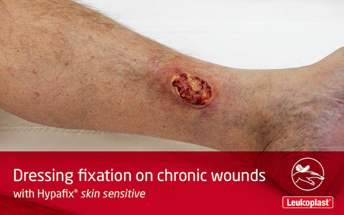 In this video we learn how to use Hypafix skin sensitive for leg ulcer treatment: We see the hands of an HCP securing a large dressing over an ulcer on a patient's lower leg.