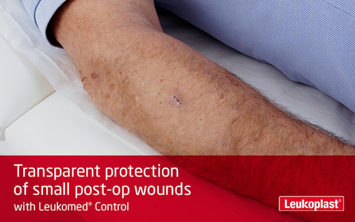 This film shows the use of a transparent wound dressing: we see the hands of an HCP covering a small surgical incision on a patient's forearm with Leukomed Control.