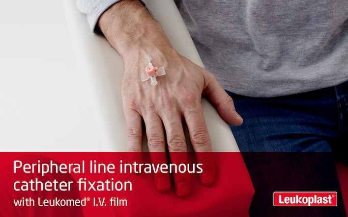 This film shows how an intravenous injection site is secured with an IV dressing: We see how an HCP applies Leukoplast I.V. film to the back of a patient's hand and secures a catheter.
