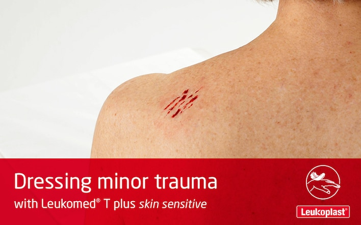 In this video is shown how skin tears can be avoided in ageing skin: We see the hands of an HCP dressing the abrasion on an elderly woman's shoulder using Leukomed T plus skin sensitive.