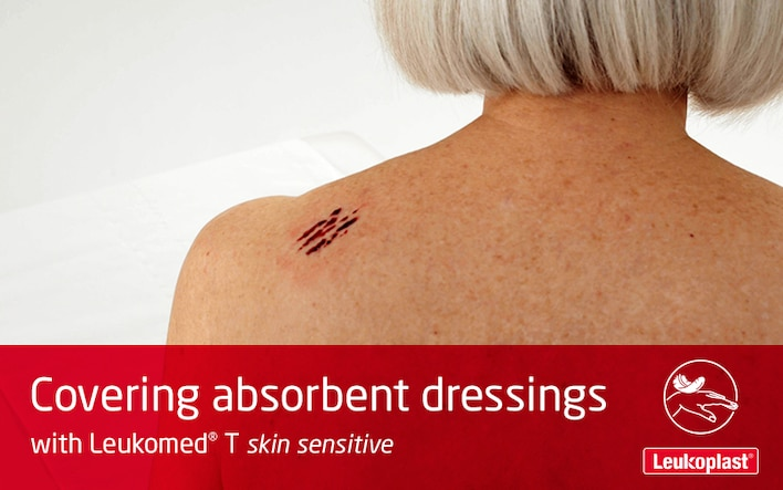 This video demonstrates the use of a transparent film wound dressing on fragile skin. We see the hands of a HCP applying Leukomed T skin sensitive on the shoulder of an elderly lady.