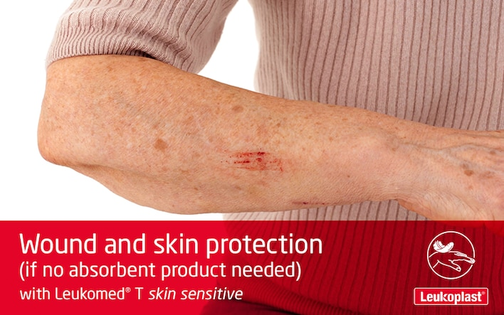This video shows how a transparent film wound dressing is used on fragile skin: we see the hands of a HCP applying Leukomed T skin sensitive to a scratch on the forearm of an elderly lady.