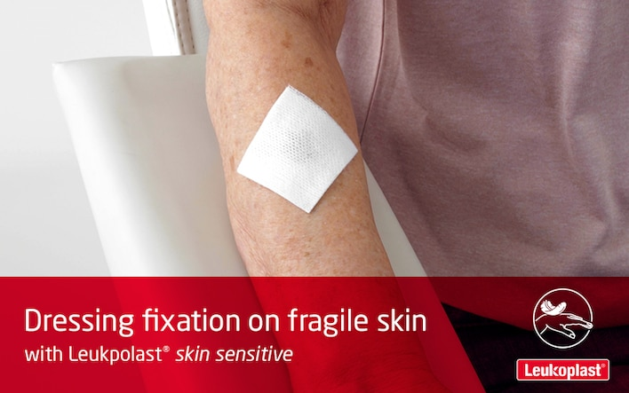 Here we see how to apply and reposition a wound dressing on highly sensitive skin with medical tape: an HCP secures a wound pad on an elderly woman's forearm with fragile skin, using Leukoplast skin sensitive.