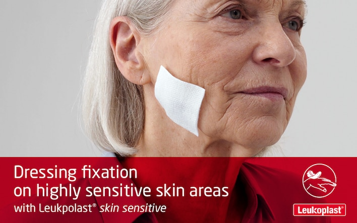 Here we see how to apply and reposition a wound dressing on highly sensitive skin areas, using medical tape: an HCP secures a wound pad on an elderly woman's cheek with fragile skin with the help of Leukoplast skin sensitive.