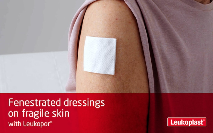 Here we can see in close-up how fenestrated dressings are applied to fragile skin with the help of breathable medical tape: the hands of an HCP are fastening a wound pad to the shoulder of an elderly woman with Leukopor tape.