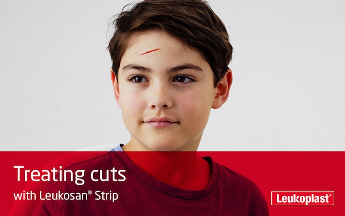Here is shown how to treat cut wounds with the help of Leukosan Strip: we see two hands close-up using wound closure strips to close a cut on a boy's forehead.